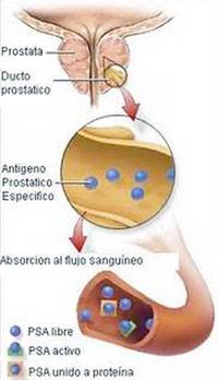 análisis de psa antígeno prostático específico